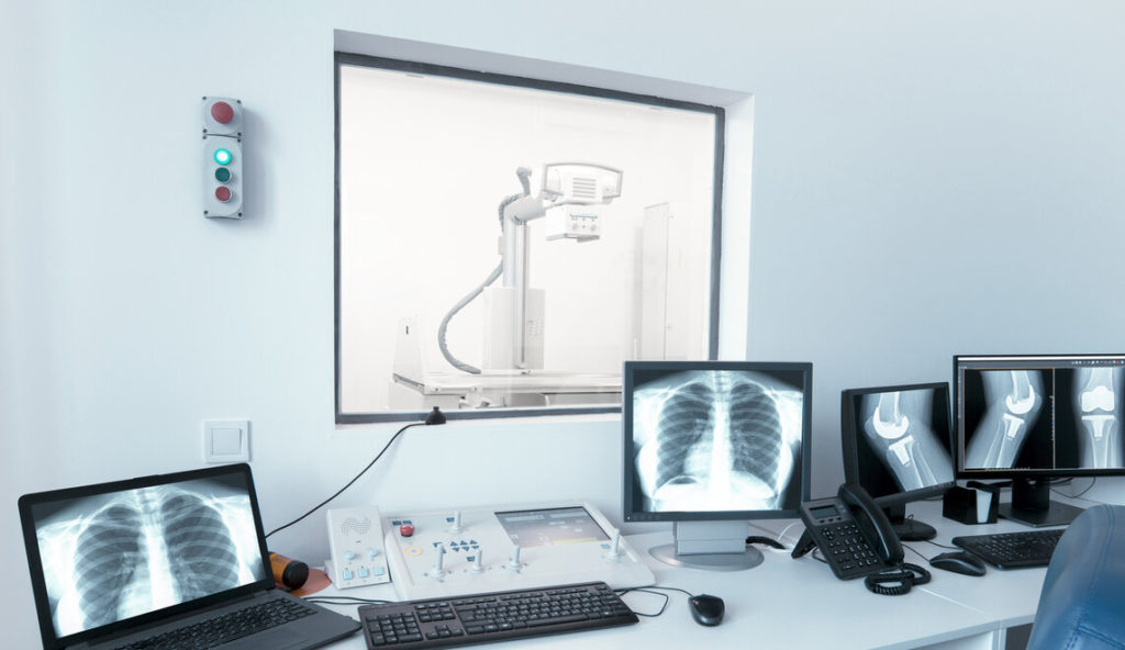 A Purchasing Insight on Portable X-ray Machines.